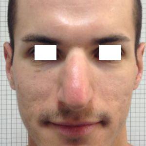 rinoplastica naso grande uomo prima frontale