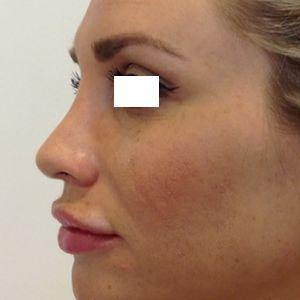 rinoplastica naso lungo donna dopo