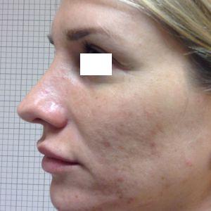 rinoplastica naso lungo donna prima
