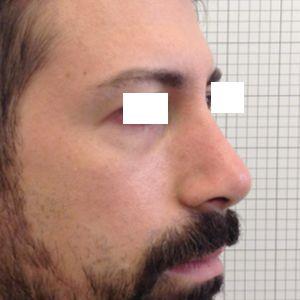 rinoplastica naso lungo uomo dopo laterale