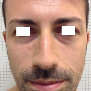 rinoplastica naso lungo uomo prima frontale