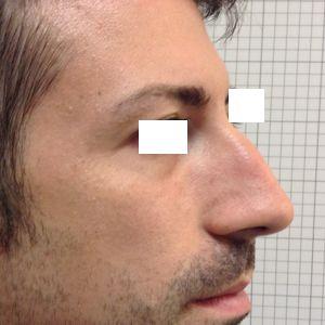 rinoplastica naso lungo uomo prima laterale
