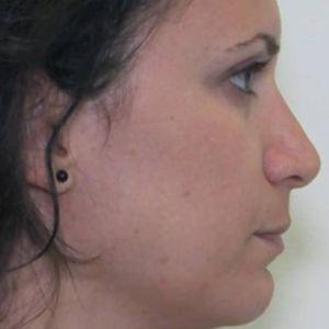 Rinoplasticanaso lungo con punta prominente destra dopo