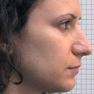 Rinoplasticanaso lungo con punta prominente destra prima