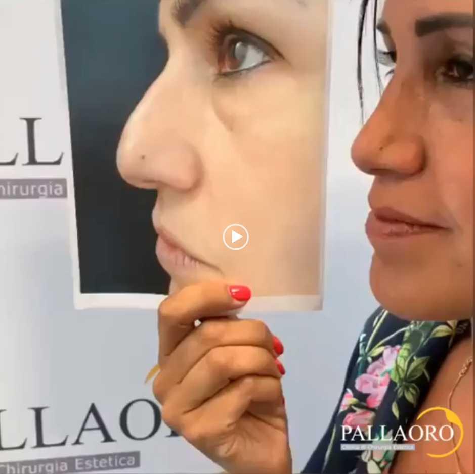 Rinoplastica dorso del naso – Video