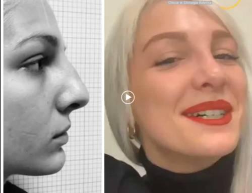 Rinoplastica naso non armonico
