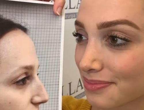 Rinoplastica corregge il naso e valorizza gli occhi