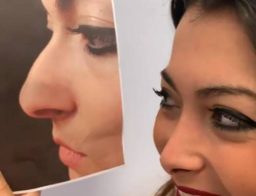 Rinoplastica del naso lungo e narici larghe