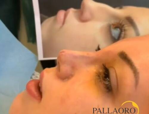 Rinoplastica femminile su naso aquilino e punta ipertrofica