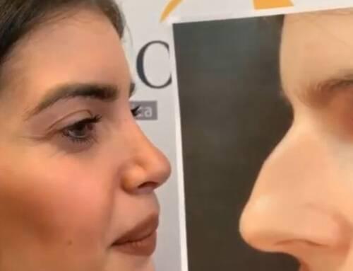 Rinoplastica di naso lungo, aquilino e con le narici larghe