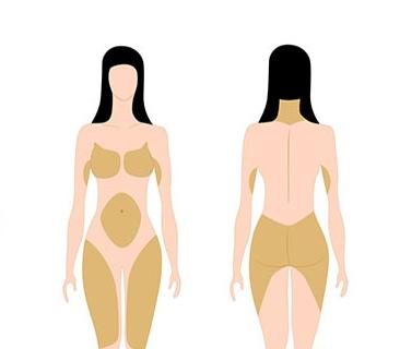 Tessuto adiposo - Distribuzione nella donna