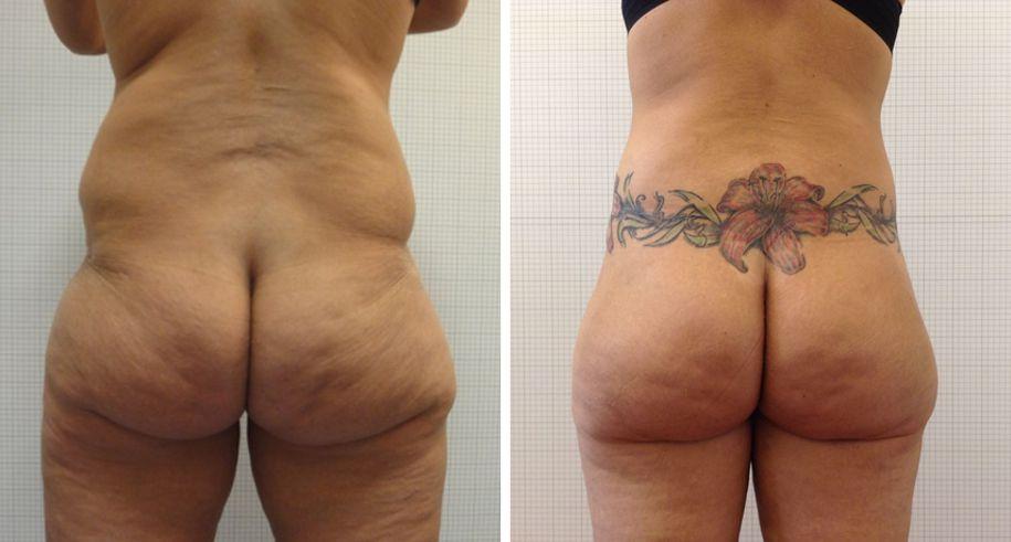 torsoplastica foto 02