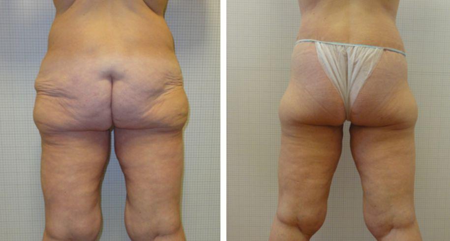 torsoplastica foto 03