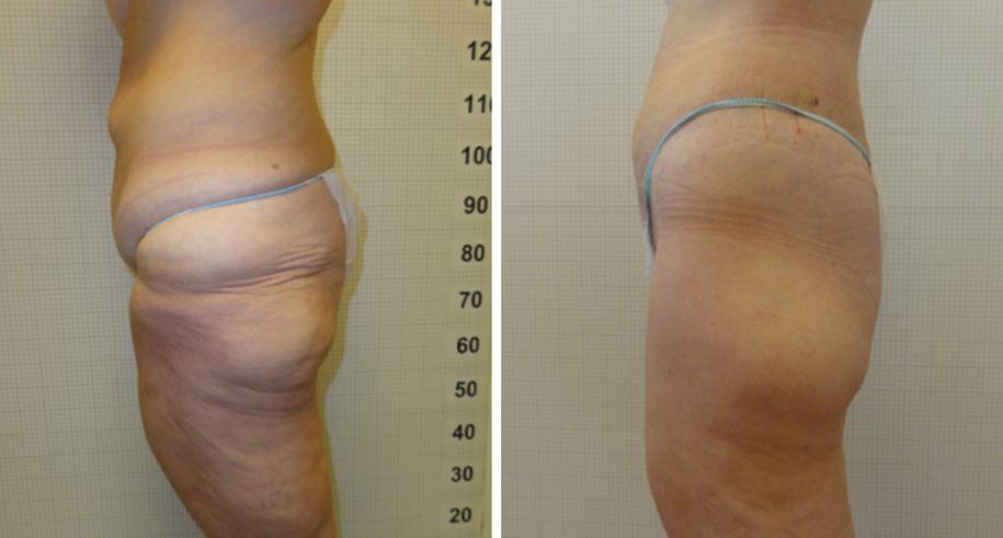 torsoplastica foto 04