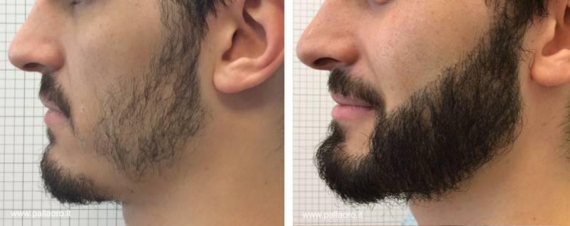 Trapianto capelli Micro FUE HD su barba