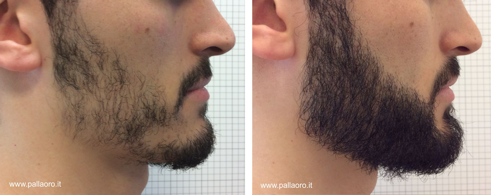 Trapianto capelli barba