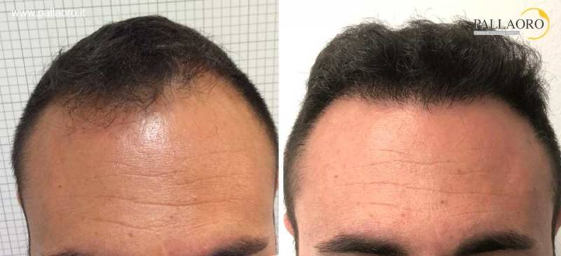 trapianto capelli foto 0042