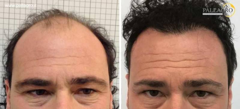trapianto capelli 0047