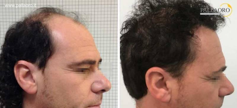 trapianto capelli risultati 0048