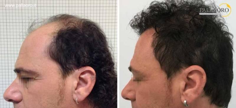 trapianto capelli 0049