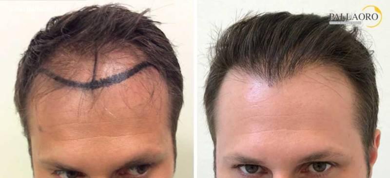 trapianto capelli 0056