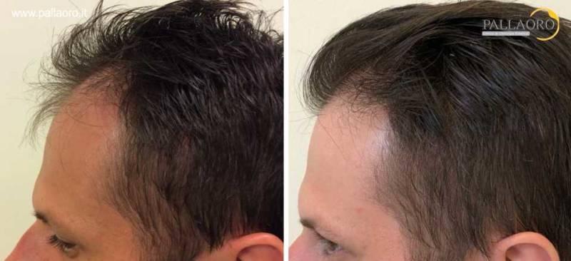 trapianto capelli 0057