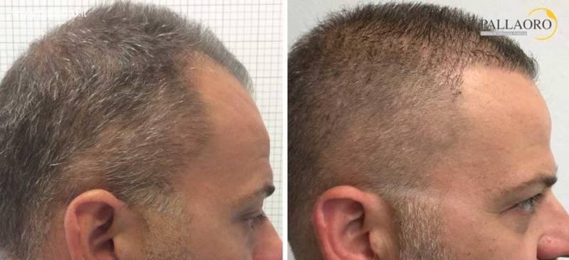trapianto capelli 0058
