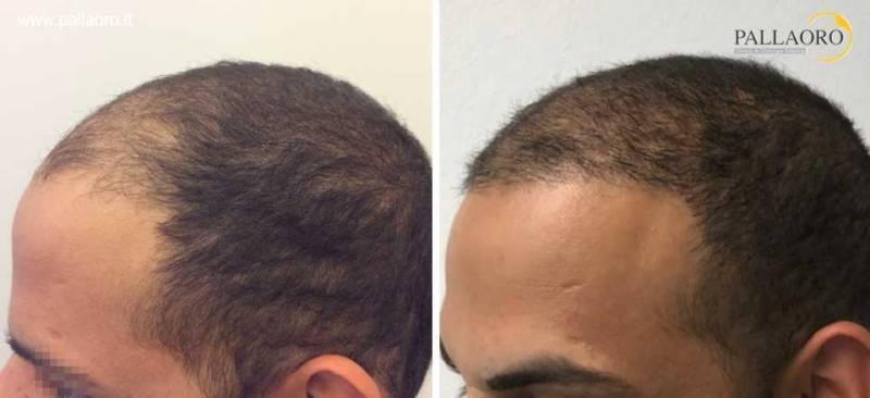 trapianto capelli 0061