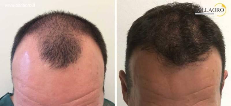 trapianto capelli 0063