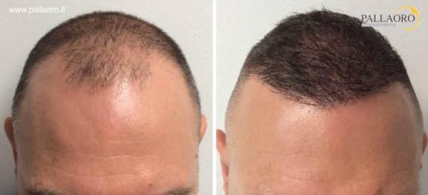 trapianto capelli 0067