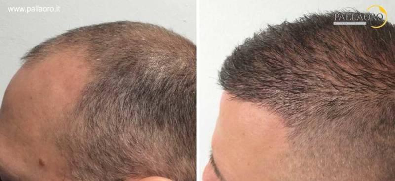 trapianto capelli 0068
