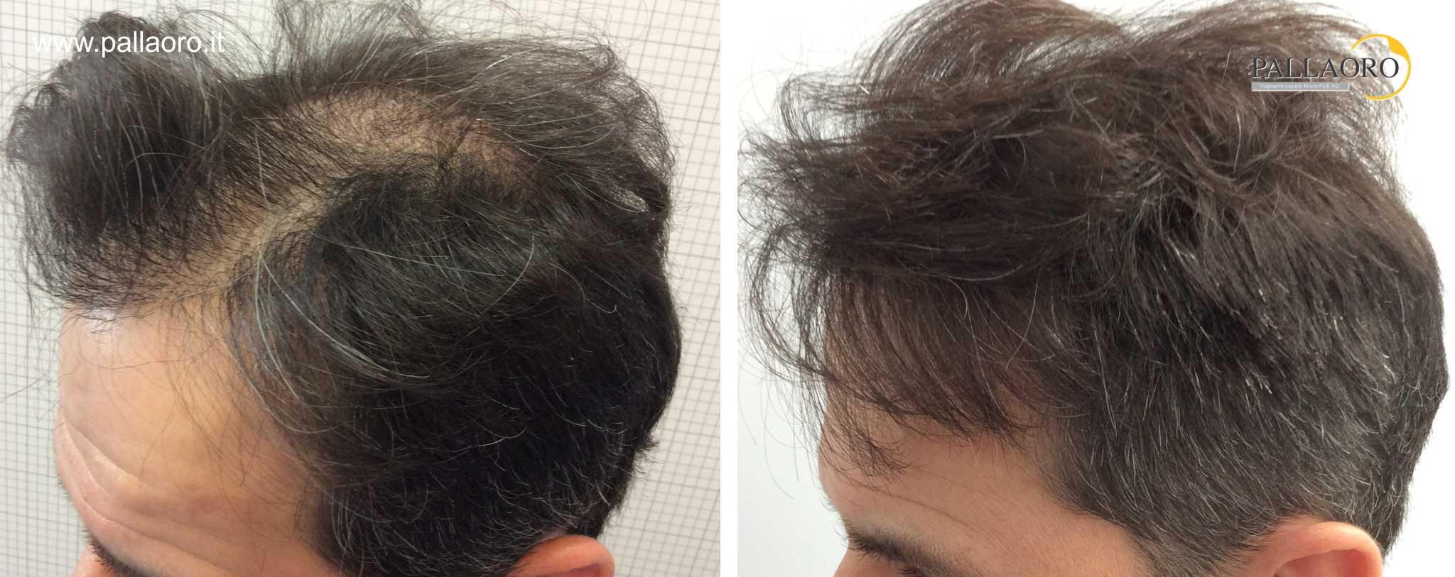 Trapianto capelli foto: trapianto capelli 01062