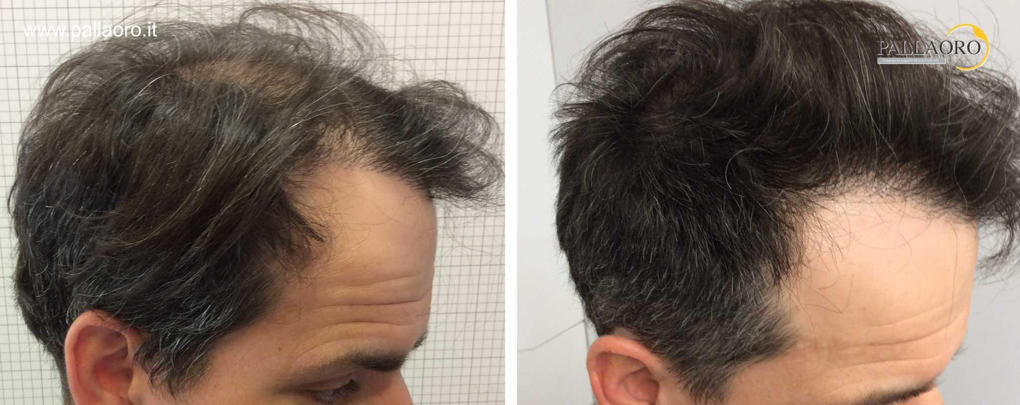 trapianto capelli 01061