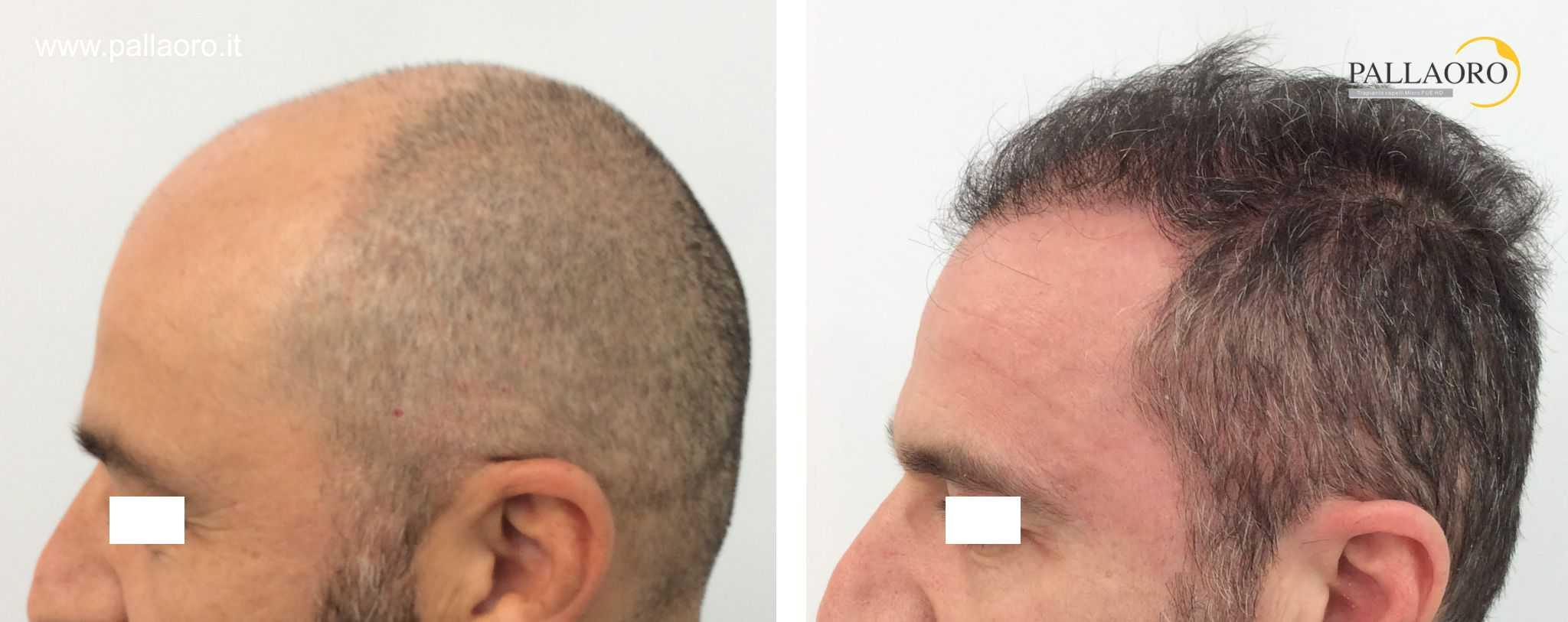 trapianto capelli 01092