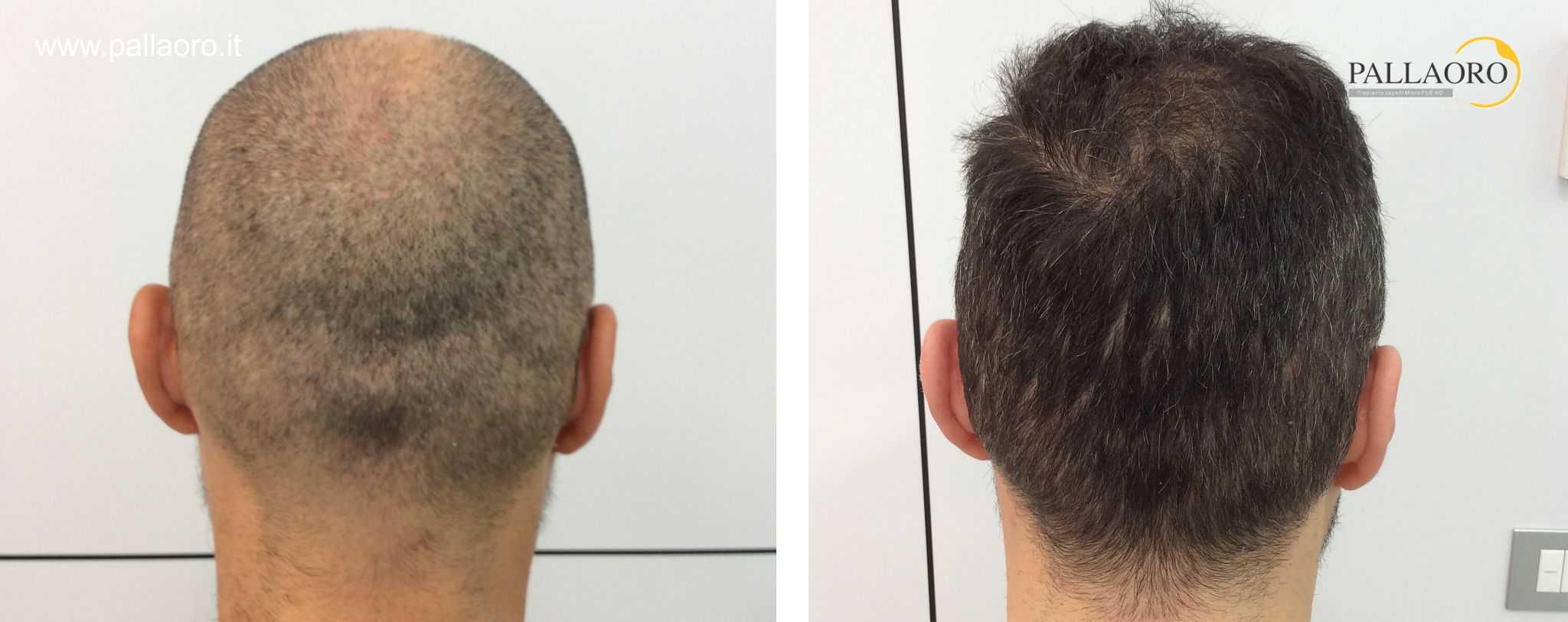 trapianto capelli 01093