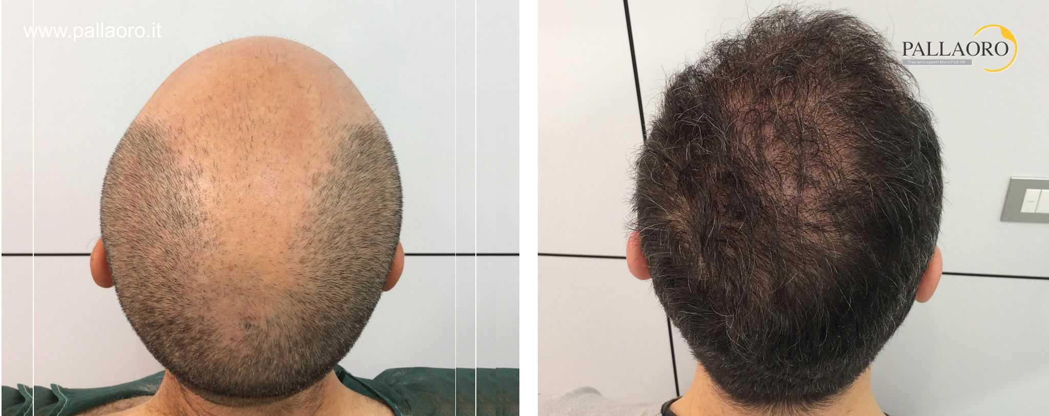 trapianto capelli 01094