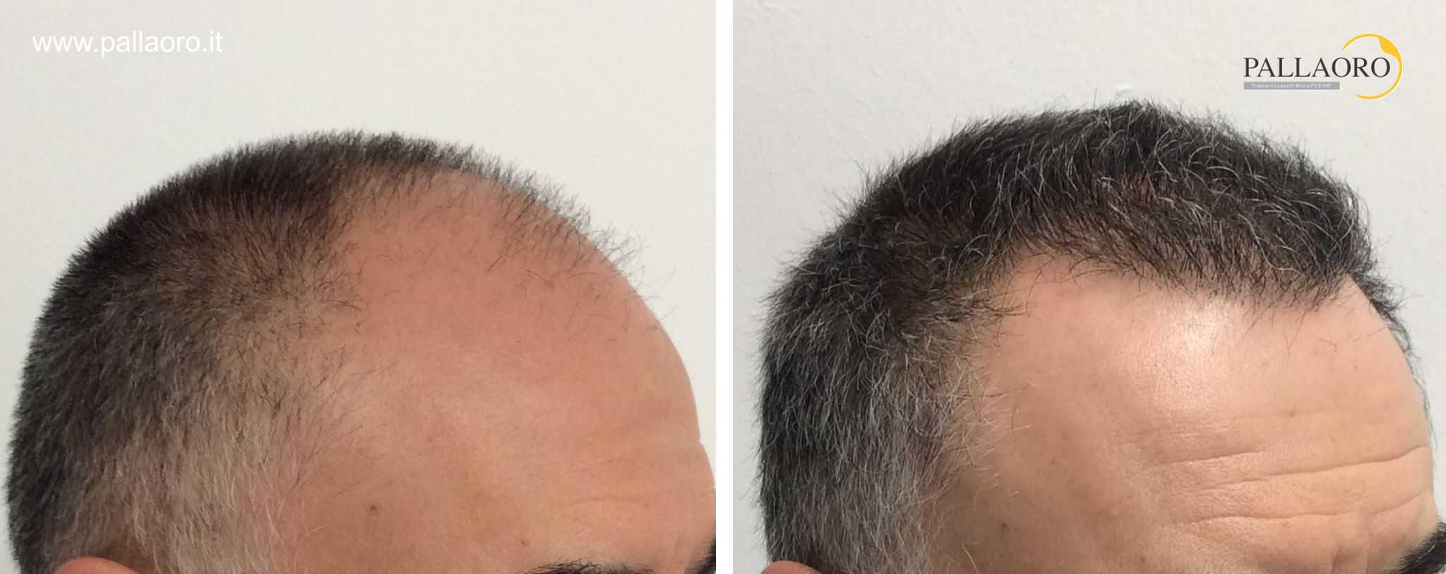 trapianto capelli 01101