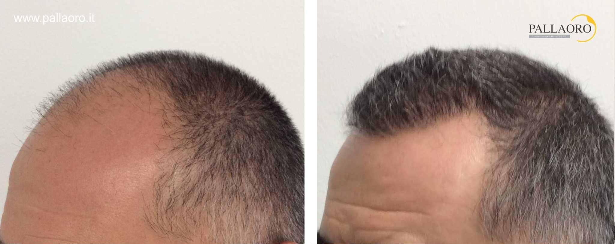 trapianto capelli 01102