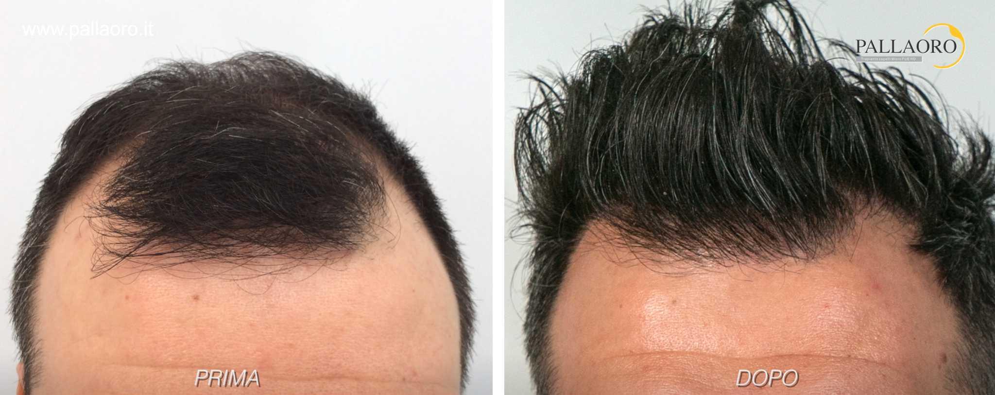 trapianto capelli 01202