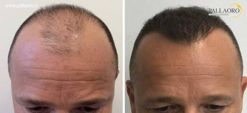 trapianto capelli 0202