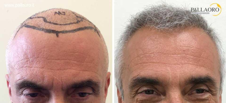 trapianto capelli 0204