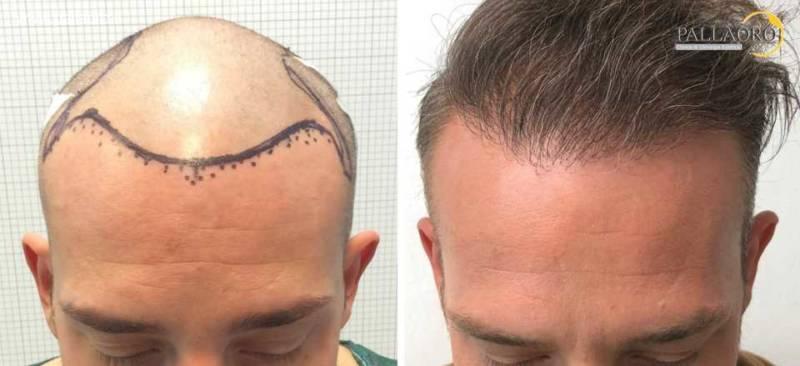 trapianto capelli 0205