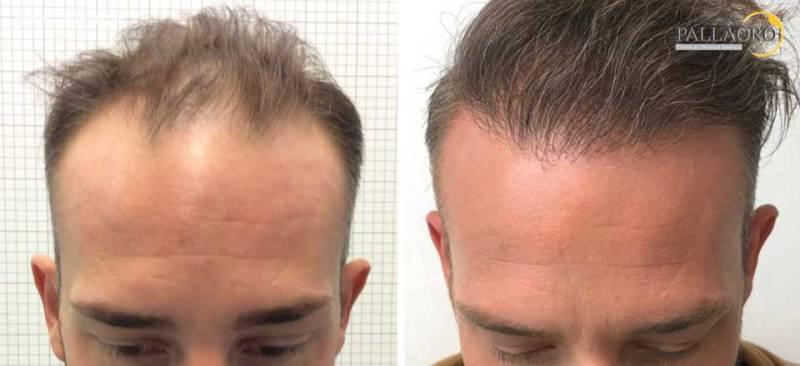 trapianto capelli 0206