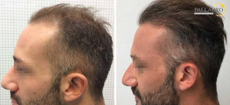trapianto capelli 0207