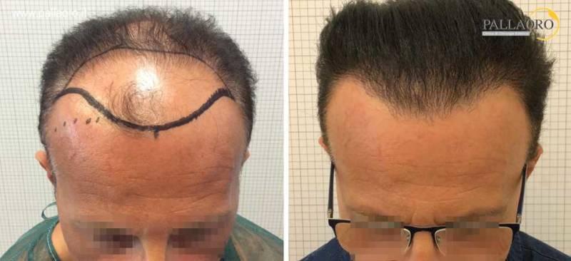 trapianto capelli 0211