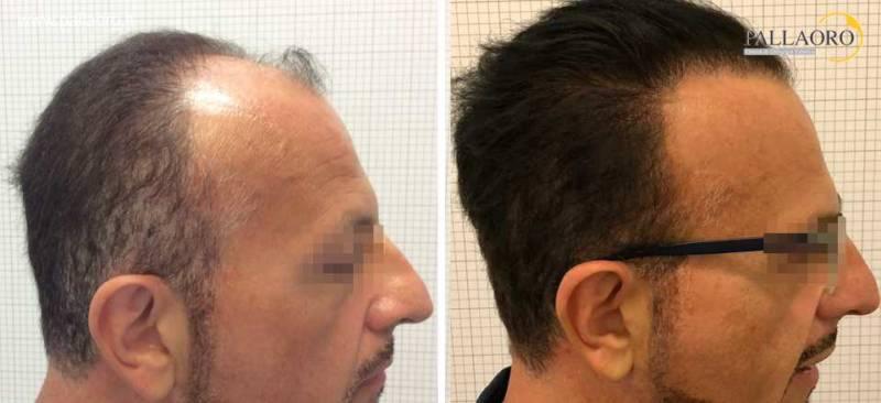 trapianto capelli 0212