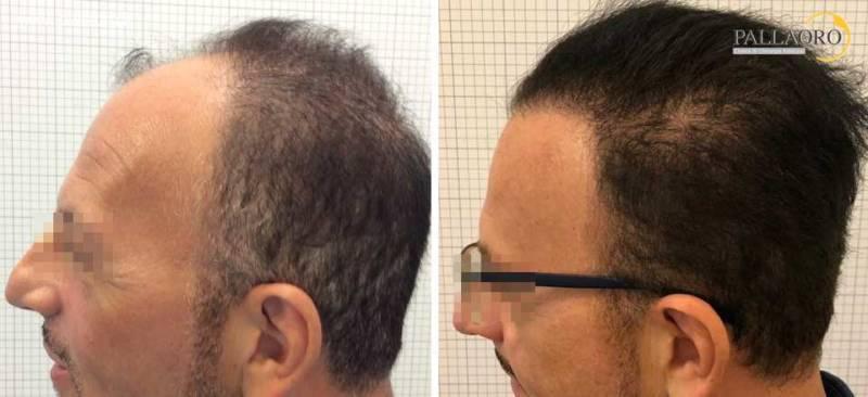 trapianto capelli 0213