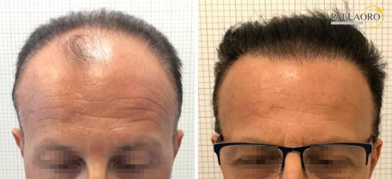 trapianto capelli 0214