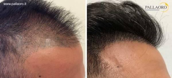 trapianto capelli 0218