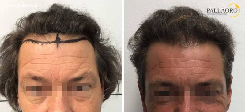Trapianto capelli prima dopo: Revisione della hairline con impianti follicolari ad alta densità